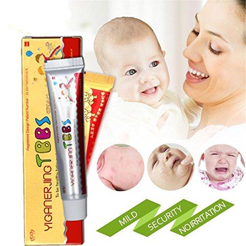 GARYOB Baby Antibakterielle Salbencremes CEZUBEM Psoriasis Ekzempeeling Kr?utercremes Hautkrankheitsbehandlung (1% Creme Topische)