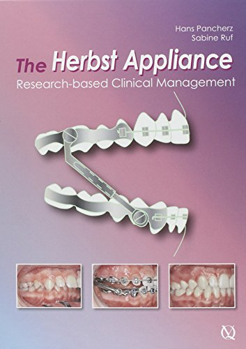The Herbst Appliance: Research-B...