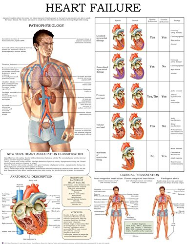 Heart failure e-chart: Quick reference guide (English Edition) (Chart Flow Blood)
