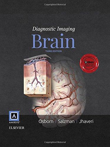 Diagnostic Imaging: Brain, 3e por Anne G. Osborn MD  FACR