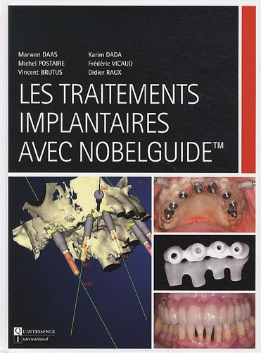 Les traitements implantaires avec Nobelguide