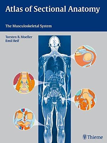 Atlas of Sectional Anatomy by Torsten Moeller (2009-11-18)