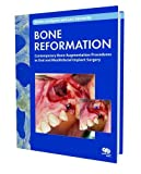 Bone Reformation: Contemporary Bone Augmentation Procedures in Oral and Maxillofacial Implant Surgery