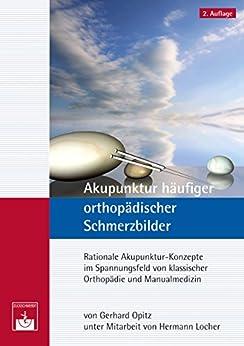 Akupunktur häufiger orthopädischer Schmerzbilder: Rationale Akupunktur-Konzepte im Spannungsfeld von klassischer Orthopädie und Manualmedizin