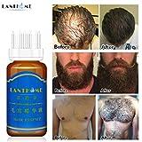 Haarwachstum Shampoo Haarwachstum Spray Flüssig Produkt 20ml Haarwachstum Flüssig Spray Extra...