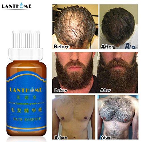 Haarwachstum Shampoo Haarwachstum Spray Flüssig Produkt 20ml Haarwachstum Flüssig Spray Extra Stärke des Haares Anti Haarverlust Essenz Fluid