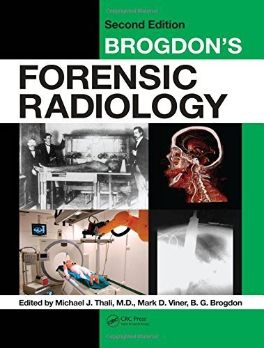 Brogdon's Forensic Radiology, Second Edition (2010-11-22)