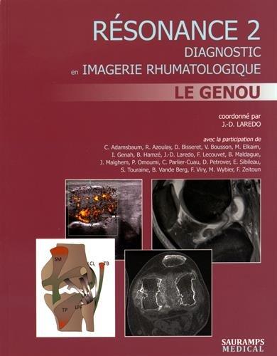 Résonance : Diagnostic en imagerie rhumatologique Tome 2, Le genou