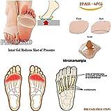 Pedimend mezze dita metatarso tessuto gel Pads (2PAIRS–4pcs)–neuroma di Morton, alluce valgo & avampiede ammortizzazione–prevengono calli e vesciche/metatarsalgia/tendinite/artrite–suola antiscivolo–per uomini e donne–cura dei piedi immagine