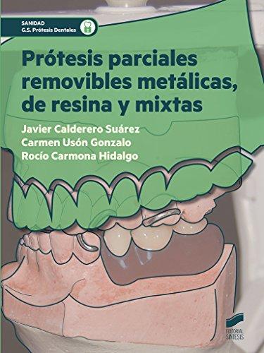 Prótesis parciales removibles metálicas, de resina y mixtas (Sanidad)