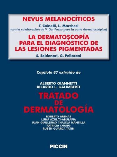 Capítulo 87 extraído de Tratado de Dermatología - NEVOS MELANOCÍTICOS/LA DERMOSCOPÍA PARA EL DIAGNÓSTICO DE LAS LESIONES PIGMENTADAS por A.Giannetti
