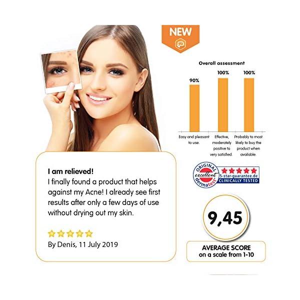 ITCHIE Sérum para la piel con acné – Resultados 100% Comprobados – Tratamiento del Acné Todo en Uno – Calma la…