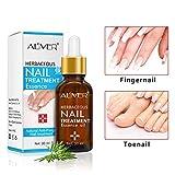 FidgetGear Herbal Fungal Nail Treatment Essential Oil Toe Nail Fungus Removal Infection Feet