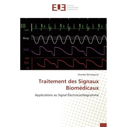 Traitement des Signaux Biomedicaux: Applications au Signal electrocardiogramme