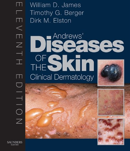 SPEC - Andrews' Diseases of the Skin E-Book 12Month Subscription: Clinical Dermatology - Expert Consult - Online and Print (James, Andrew's Disease of the Skin) (English Edition)