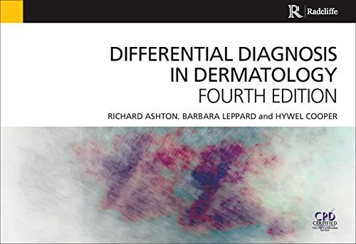 Differential Diagnosis in Dermatology 4th Edition by Ashton, Richard, Leppard, Barbara, Cooper, Hywel (2014) Paperback