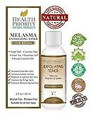 Best Treatment For Melasma - melasma treatment for face - 100% natural Review