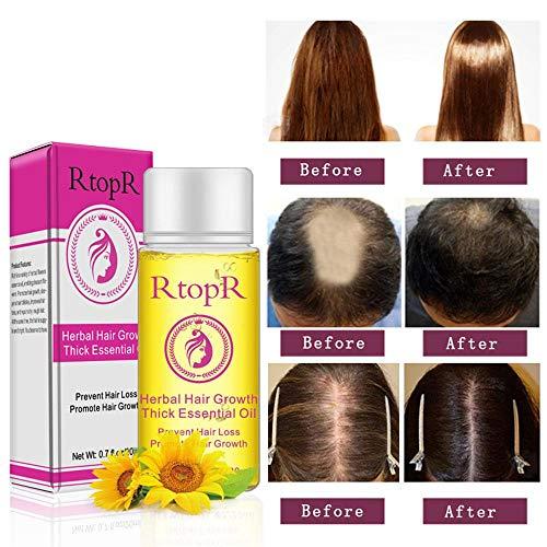 Haarwachstums Serum Anti Haarausfall Serum, KOBWA Hair Growth Serum gegen Haarausfall Haarverdünnung Bruch, für Männer und Frauen (20ml)