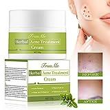 Crema Acne, Anti Acne, Acne Crema, Acne RemovalCrema, Crema Viso Acne Extra Forte Naturale - Aiuta a bilanciare l'acqua e l'olio del viso, rimuovere l'acne