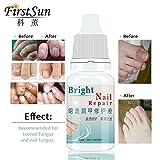 Shopystore Fungal Onychomycosis Fungal Nail Treatment Toe Nail Serum Repair