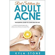 Real Solutions for Adult Acne: The Essential Guide to Clear Skin for Life (English Edition)