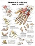 3B Scientific Lehrtafel - Hand und Handgelenk - Anatomie und Pathologie