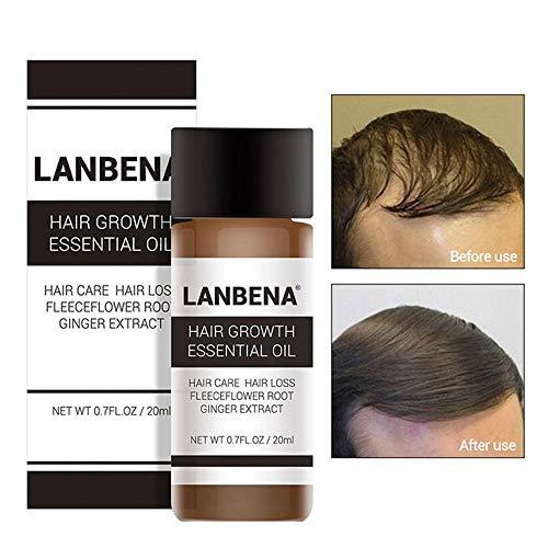 ricrescita capelli, lesioni olio per crescita rapida dei capelli con zenzero, calvizie per perdita dei capelli e trattamento assottigliamento dei capelli, promuove olio per capelli spessi