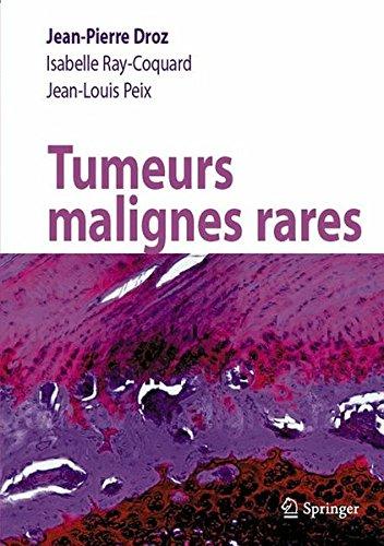 Tumeurs malignes rares