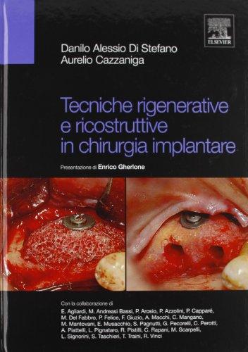 Tecniche rigenerative e ricostruttive in chirurgia implantare