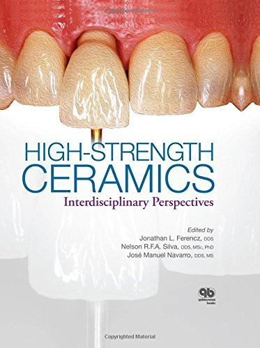 High-Strength Ceramics: Interdisciplinary Perspectives by Jonathan Ferencz (2014-09-01)