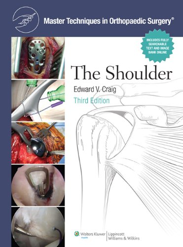 The Shoulder (Master Techniques in Orthopaedic Surgery)