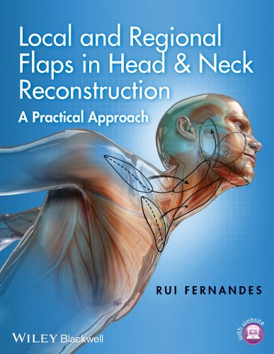 Local and Regional Flaps in Head and Neck Reconstruction: A Practical Approach por Rui Fernandes