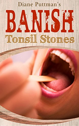 banish-tonsil-stones-its-a-step-by-step-guide-that-will-take-you-by-the-hand-and-show-you-the-exact-