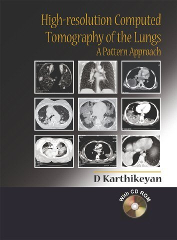 High-Resolution Computed Tomography of the Lungs: A Pattern Approach by D Karthikeyan (2005-07-29)
