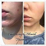 Nu Skin - Epoch Blemish Treatment - Traitement contre les taches,15ml -