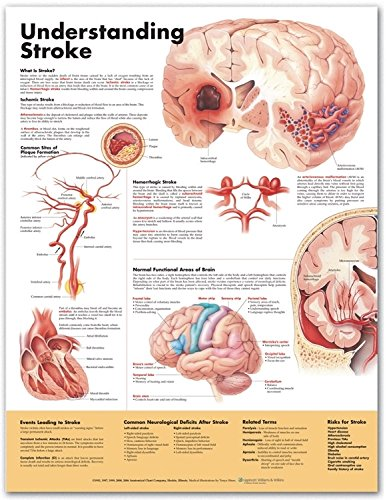 Understanding Stroke Anatomical Chart Der Allgemeinmedizin Ambulante