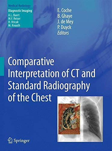 Comparative Interpretation of CT and Standard Radiography of the Chest (Medical Radiology) (2014-03-26)