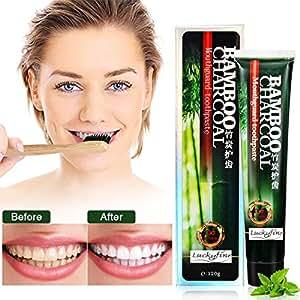 LuckyFine Carbone Dentifricio, Denti al Carbone Attivo Dentifricio Sbiancante, Pulizia Intensiva per Eliminare l'alito Cattivo e Denti le Macchie, Sbiancamento dei Denti 120g