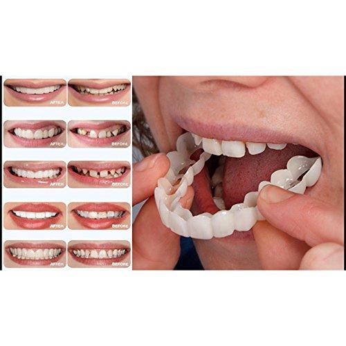 Yiwa Teeth...