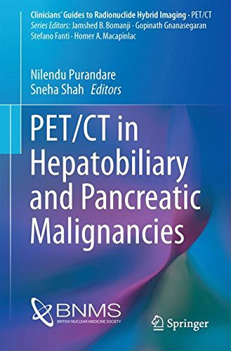 PET/CT in Hepatobiliary and Pancreatic Malignancies (Clinicians' Guides to Radionuclide Hybrid Imaging)