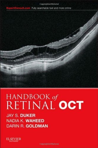 Handbook of Retinal OCT: Optical Coherence Tomography: Expert Consult: Online and Print, 1e 1 Pap/Psc by Duker MD, Jay S., Waheed, Nadia K, Goldman, Darin (2014) Paperback