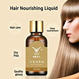 Generic 30ml Men Women Hair Care Treatment Preventing Hair Loss Fast Powerful Hair Growth Products Regrowth Essence Liquid