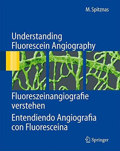 Understanding Fluorescein Angiography: Fluoreszeinangiografie verstehen. Entendiendo Angiografia con Fluoresceina por Manfred Spitznas