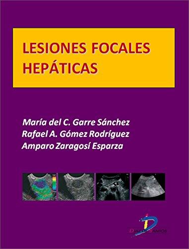 Lesiones focales hepáticas  (Este capítulo pertenece al libro Tratado de ultrasonografía abdominal) por Maria del Carmen Garre Sánchez