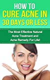 Acne: The Most Effective Natural Acne Treatment and Acne Remedy for Life (Acne, Acne Cure, Cure Acne, Acne Remedy, Acne Treatment, Acne, How To Cure Acne, Acne Removal, Skin Care)