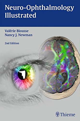 PDF Download] Neuro-Ophthalmology Illustrated Read online