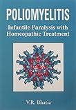 Poliomyelitis: Infantile Paralysis with Homeopathic Treatment: 1