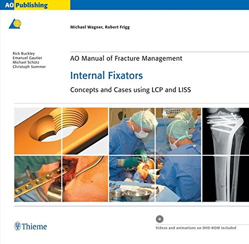 AO Manual of Fracture Management: Internal Fixators: Concepts and Cases using LCP/LISS