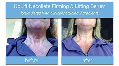BeFab Skin Care UpLift Necollete Firming & Lifting Serum