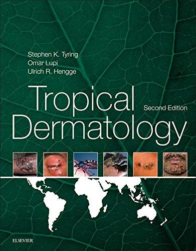 Tropical Dermatology E-Book